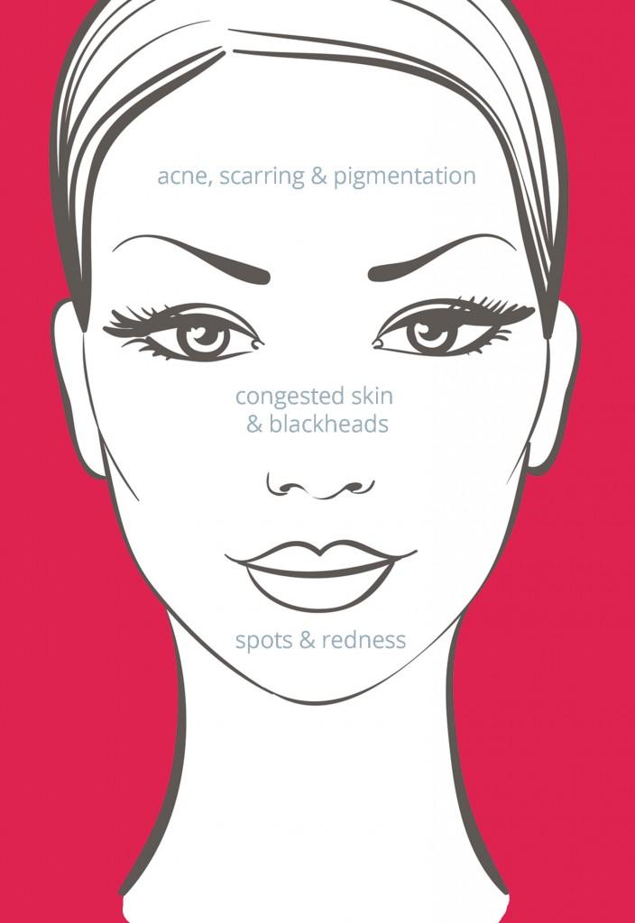 acne treatments belfast northern ireland